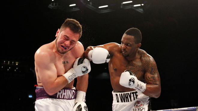 Dillian-Whyte-01