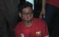 Tới Shah Alam coi đá bóng, CĐV U22 Myanmar bị đánh cho sấp mặt