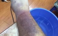 Văn Lâm lần đầu chia sẻ về chấn thương nặng