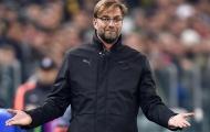 Liverpool sẽ thi đấu như Manchester United?