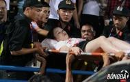 CĐV quốc tế: 'Cô gái Việt này còn chịu đau giỏi hơn Neymar'