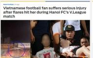 """Vấn nạn pháo sáng: """"Quả bom nổ chậm"""" của thầy trò HLV Park Hang-seo"""