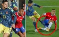 James Rodriguez thoát thẻ đỏ sau cú đạp triệt hạ Alexis Sanchez