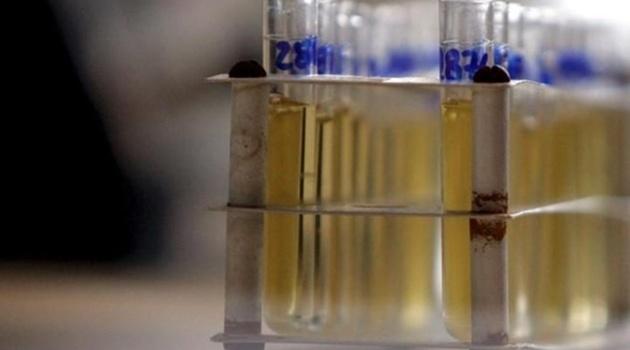 Xác nhận 28 trường hợp sử dụng doping tại Olympic 2016