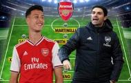 Mất Aubameyang lẫn Lacazette, Arsenal lấy gì đối đầu với Everton?