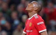 Giải cứu Martial, đối tác đổi máy quét chất lượng cho Man Utd